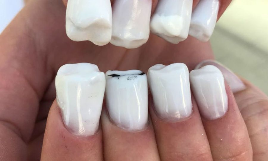 Las uñas con forma de dientes se convierten en la última moda que arrasa en Rusia